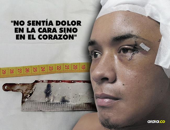Alberto Palacio se recupera en la Clínica La Misericordia Internacional y está a la espera de una segunda cirugía por los huesos fracturados. | Al Día