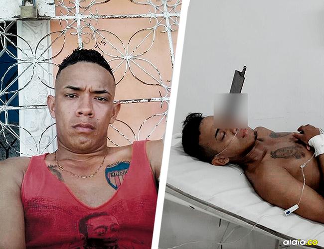Este es Alberto Palacio Vizcaíno, de 22 años, muy cerca del ojo izquierdo tiene incrustado el cuchillo. | AL DÍA