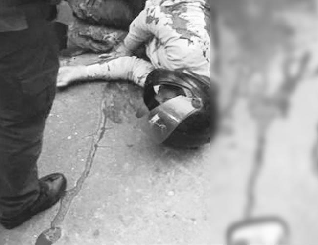 Jeison De la Rosa Jiménez intentó atracar a un ciudadano y fue herido de dos balazos por un patrullero de la Policía | Foto: Al día