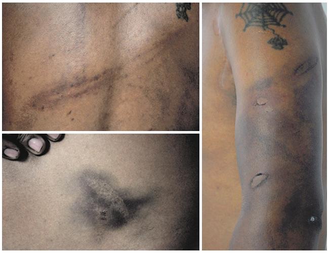 En múltiples partes del cuerpo recibió los golpes.   Fotos: Archivo