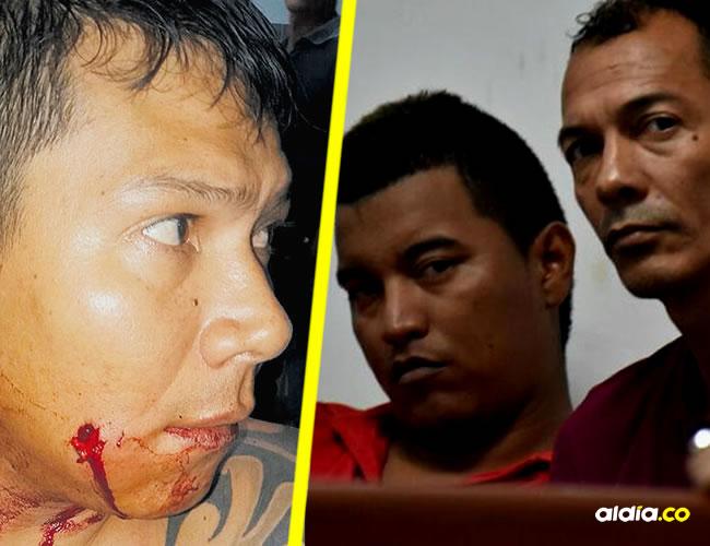 Joan Chacón Rodríguez, baleado en la mejilla izquierda. Pablo Fajardo y James Estrend Jiménez, en audiencia. | ALDÍA
