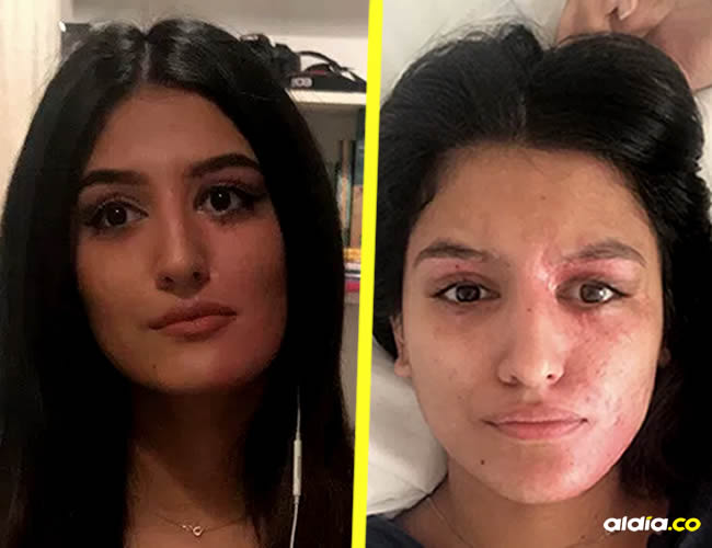La mujer contó a través de cuenta de Twitter cómo fue aquel accidente | Reshan.online