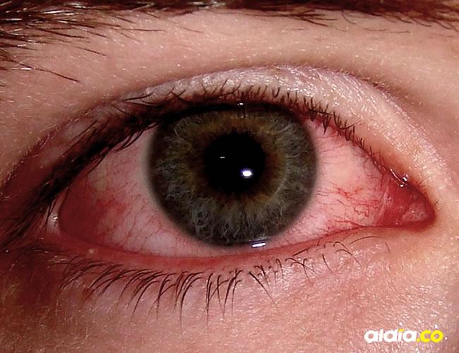 La conjuntivitis es la inflamación de la conjuntiva del ojo. Apenas aparezcan los síntomas debe acudir al médico.
