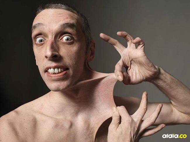 El británico Gary Turner padece un defecto en la síntesis de colágeno que le permite estirar la piel varios centímetros, tal como se observa en la foto. | Al Día