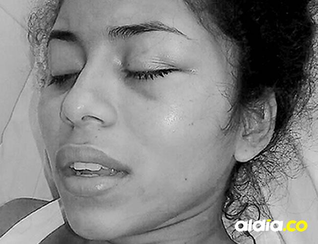 La joven había sido agredida de manera brutal por su expareja hace poco más de un mes y la envió al hospital. | AL DÍA