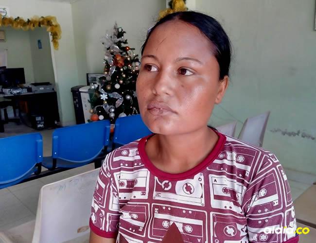 Kelly Suárez, víctima de agresión | Al Día