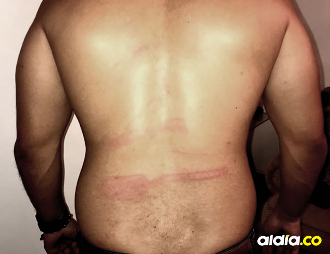Las señales de maltrato son evidentes en Javier. La víctima interpuso la denuncia ante la Fiscalía.