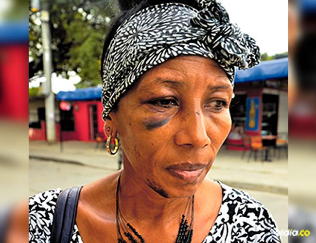 María Muñoz muestra las huellas de los golpes en la cara | AL DÍA
