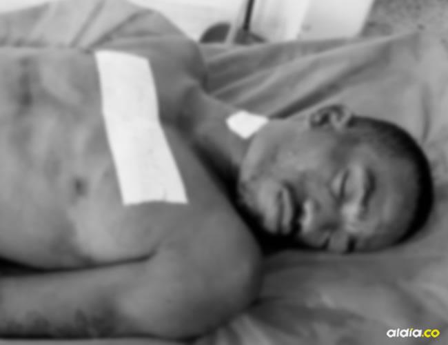 Los familiares de Blanco Morelos lo llevaron inmediatamente hasta el Hospital Universitario de Cartagena al herido donde estuvo en la UCI bajo pronóstico reservado | Archivo