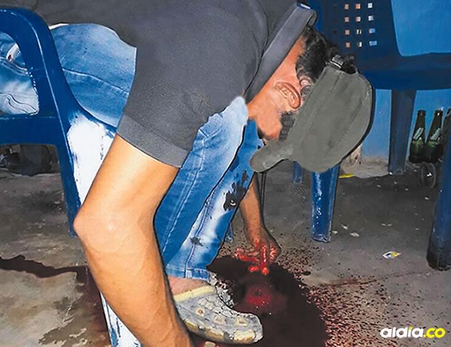 Juan Carlos fue herido en la frente. | Al Día