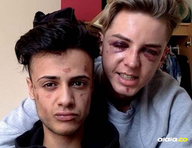 James y Dain confesaron haber quedado marcados no solo de manera física sino emocional luego de la golpiza | BBC Mundo