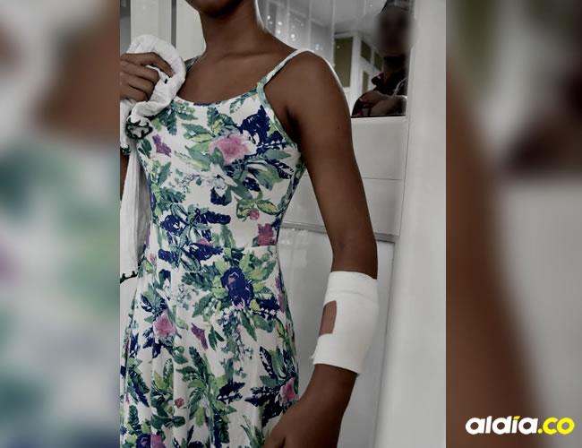 La agresión la dejó con una herida grave en su brazo izquierdo   Al Día