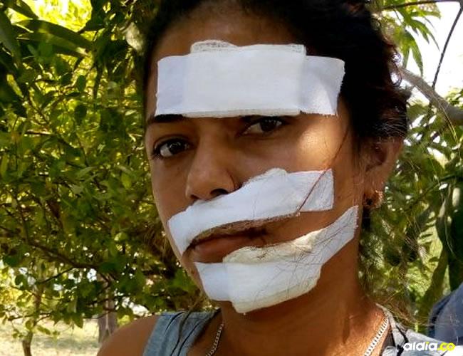 Así le quedó el rostro a Sandra Patricia Martínez, quien asegura que no está saliendo con el marido de la agresora.   AL DÍA