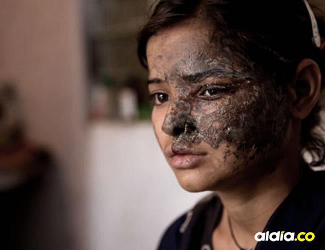Khushboo Devi tiene 20 años y fue víctima de un terrible ataque con ácido   Cover Asia Press Faisal Mgray