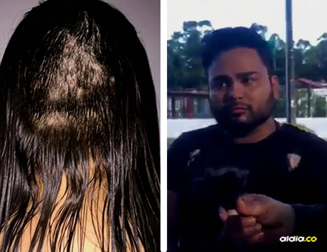 La mujer en su publicación adjuntó una foto de cómo le quedó la cabeza y un video en el que muestra cuando fue con la Policía al salón de belleza | Mundo  Interesante, Captura de pantalla