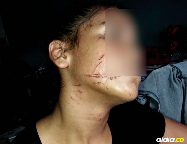 Ana María Rivera sufrió heridas en rostro y cuello.