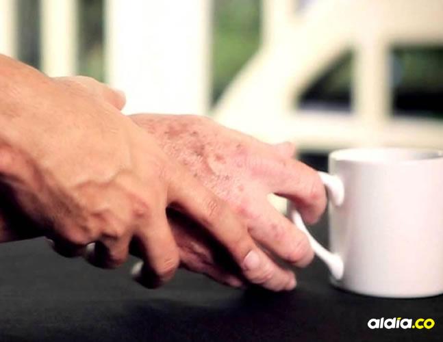 La enfermedad de Parkinson es un tipo de trastorno del movimiento. Los síntomas comienzan lentamente.   Al Día