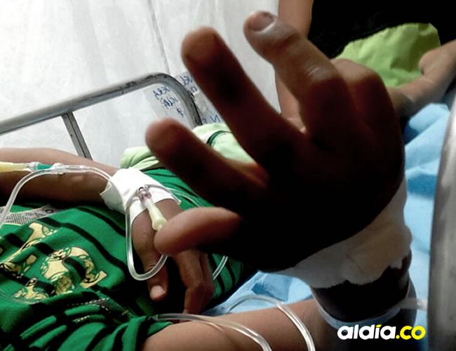 El menor resultó afectado en una mano, por fortuna la reacción de los médicos del hospital fue oportuna   ALDÍA.CO