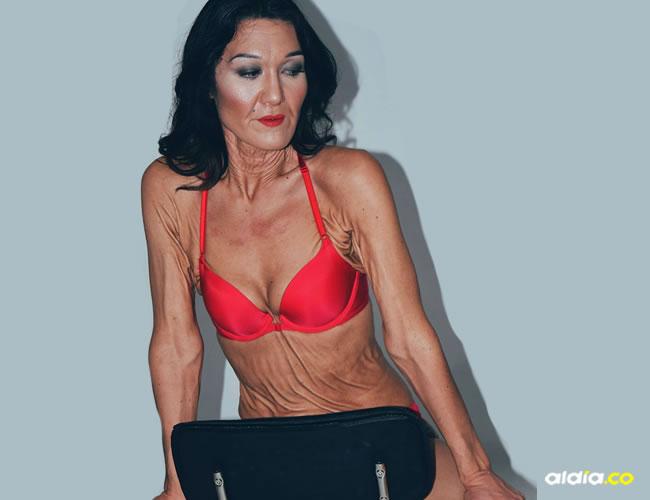 La modelo presenta desde sus 10 años el síndrome Ehlers- Danlos | Instagram