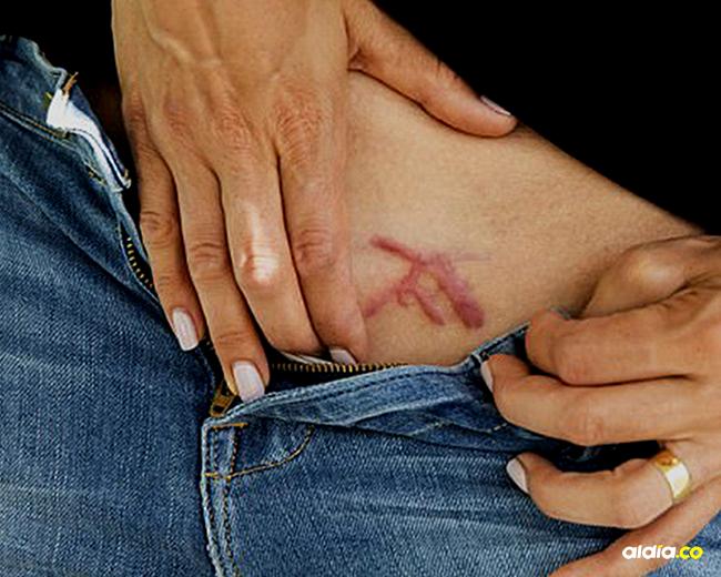 """En ceremonias, """"muchas de las víctimas de DOS fueron marcadas en su región pública con un lápiz cauterizador en un proceso que lleva de 20 a 30 minutos""""   Soledad Argentina"""