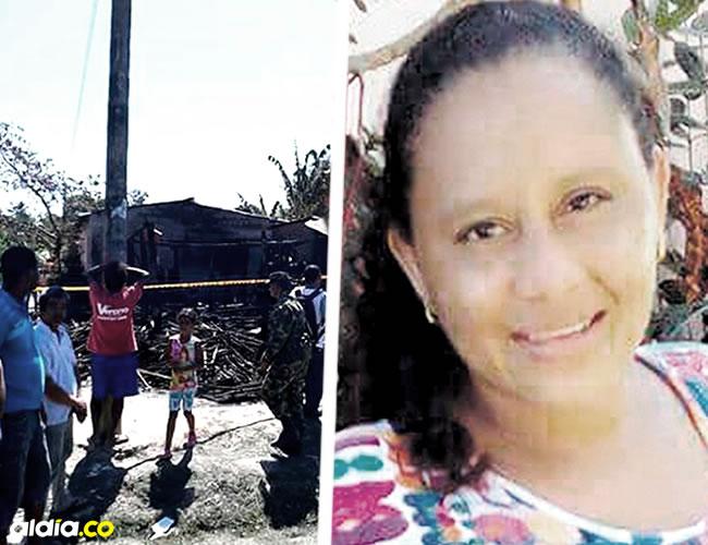 Ana Iris Martinez tiene quemaduras de segundo y tercer grado en el 90% de su cuerpo   Cortesía
