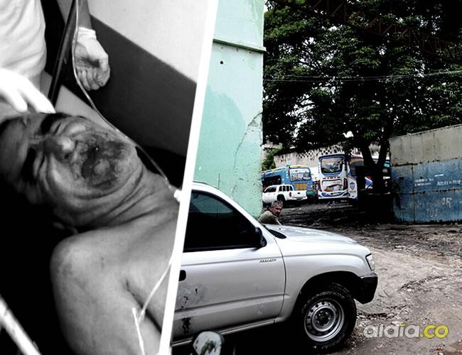 Alonso Ortiz, de 60 años, se recupera de las heridas en el Hospital General de Barranquilla   Al Día