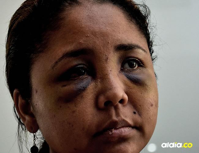 De Ávila aún tiene las secuelas de la agresión | Al Día