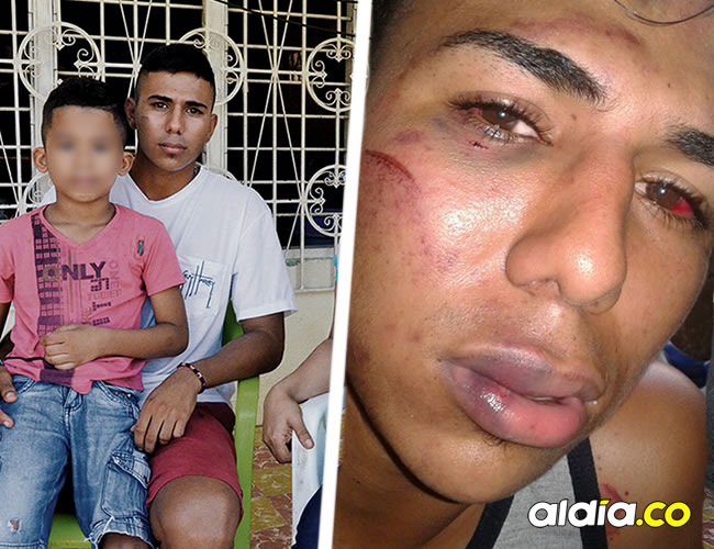 El joven Bryan Jinete Mateus sufrió graves heridas luego de que un grupo de taxistas lo torturara   ALDÍA.CO