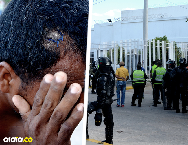 José Luis Vanegas, muestra la herida que le dejó una piedra lanzada desde el Cento de Internación de los Menores | Héctor Palacio