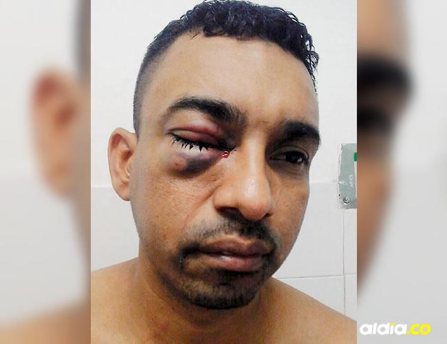 Deimer Hernández recibió una pedrada en el ojo y una puñalada en la cabeza | ALDÍA.CO