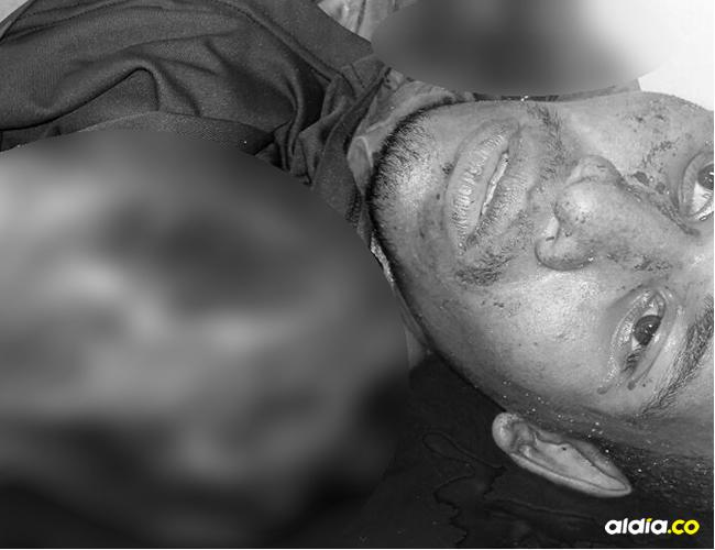 En el desespero por proteger la cabeza, el joven metía las manos | ALDÍA