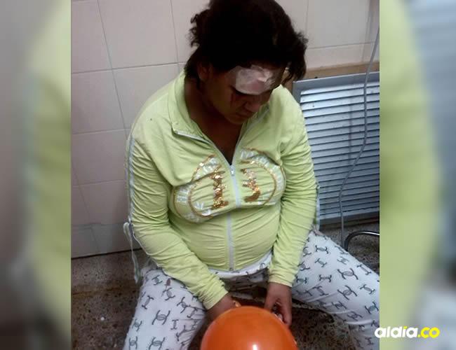 El golpe que Alicia recibió en la cabeza ameritó sutura | Cortesía