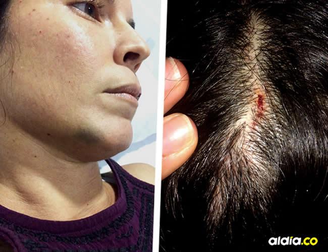 La profesora presentó golpes en el pómulo derecho, barbilla y partidura de cabeza | José Puente Sobrino