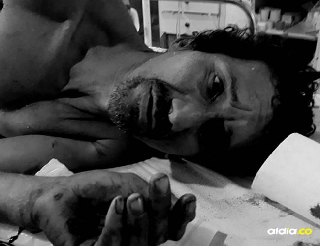El sorprendente hecho lo narró en sala de urgencias del Hospital La Divina Misericordia Eddie Daniel Orozco Díaz, de 47 años | Al Día