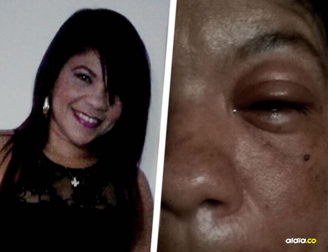 Jessica Ardila Molina muestra los hematómas que tiene en el rostro producto de la salvaje golpiza que le dio un taxista