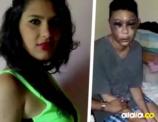 Kelly Villamizar, de 22 años, sufrió todo tipo de vejámenes por su expareja | ALDÍA.CO