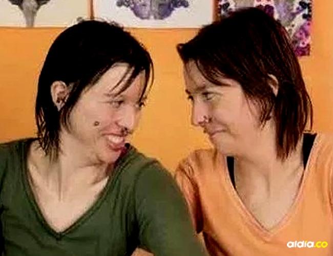 """Amanda y Sara habían participado en el programa """"The Doctor"""" donde hablaron acerca del trastorno que padecían."""