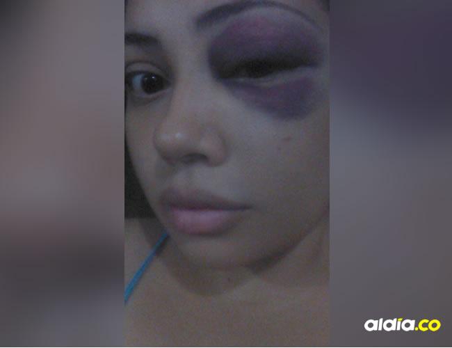La auxiliar de enfermería Ana Martha Jiménez Díaz, de 24 años, fue golpeada por un mototaxista que intentó atracarla. La mujer terminó con un hematoma en el ojo | Cortesía