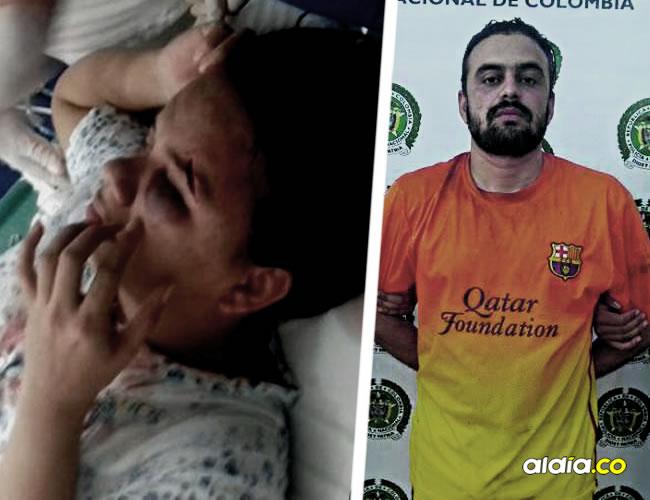 Verónica Montes de Arcos fue llevada a un puesto de salud de Plato, donde le cogieron 6 puntos de sutura debido a una profunda herida en el pómulo. Cristian Cotes, su agresor | AL DÍA.CO