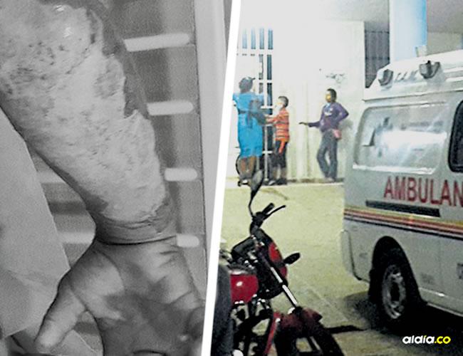 La niña sufrió varias quemaduras en el cuerpo y se encuentra en la clínica Reina Catalina | ALDÍA.CO