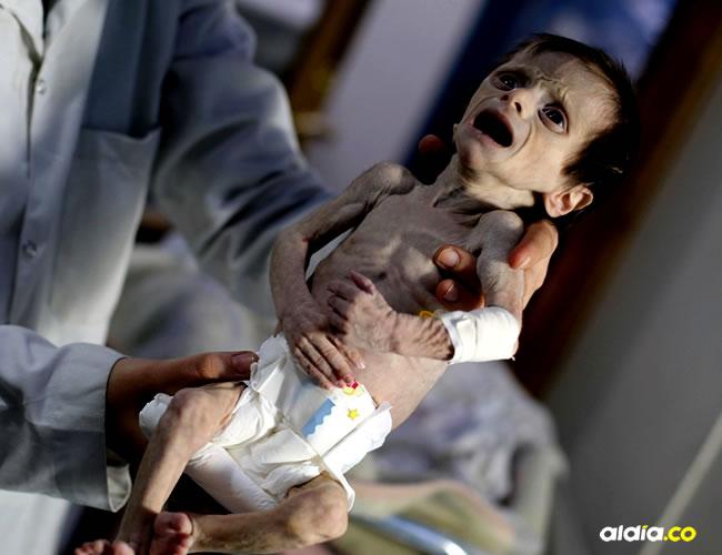 La pequeña Sahar murió al mes de nacida por la desnutrición crónica que la afectó   Al Día -AFP