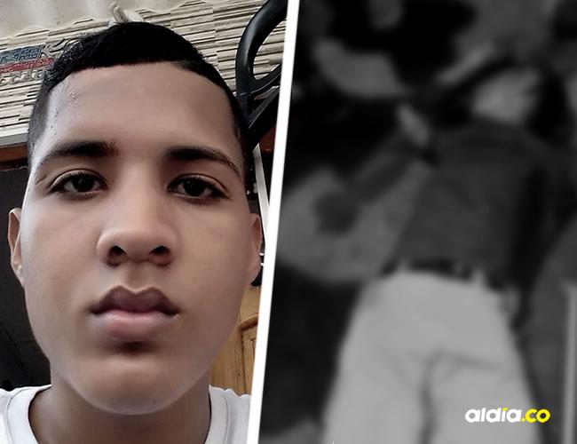Este joven conocido como 'Brayan Chatarra', tenía un fijador óseo externo en la pierna izquierda tras sufrir un accidente | ALDÍA.CO