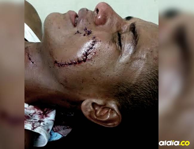 Las curaciones a este joven fueron hechas en el puesto de salud de Mingueo | Cortesía