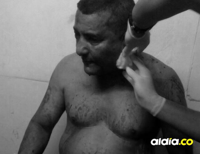 El conductor José Martínez Salcedo recibió un disparo en la oreja izquierda, tras el atraco  | Cortesía