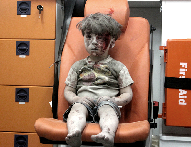 Omran Daqneesh tiene cinco años y desde que nació ha vivido en medio de la guerra en Siria. | Mahmud Rslan