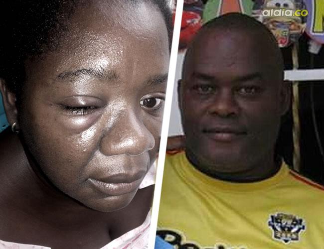 Noelia Cáceres Julio fue víctima de una golpiza por parte de su marido. Este le conectó una trompada en el ojo derecho. Climáco es el agresor | Al Día