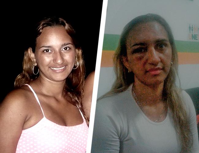 Yesenia Ester Ríos Blanco, de 28 años, mujer agredida. | ALDÍA
