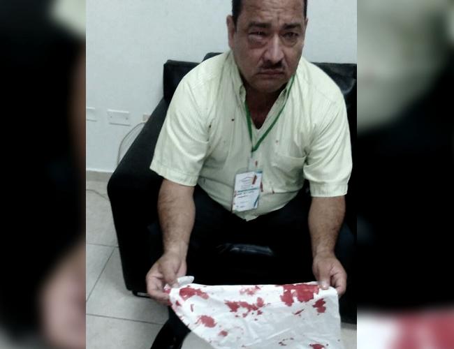 Así quedó José Arrieta el coordinador afectado. | Foto: El Propio