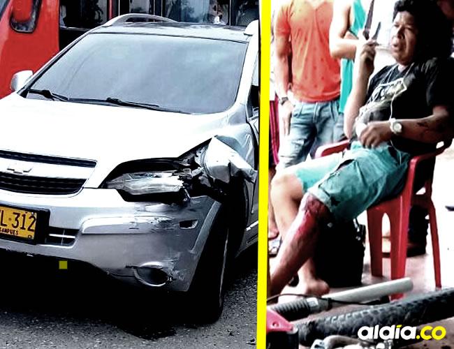 Wilberto Álvarez sufrió laceraciones en una pierna