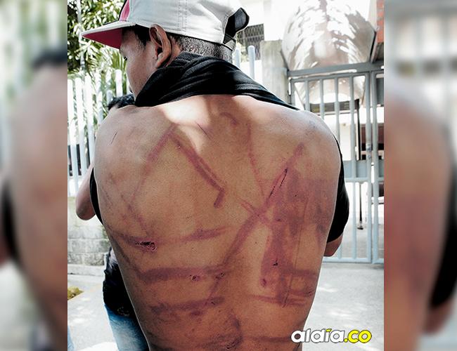 En la espalda del muchacho se observan los golpes. | AL DÍA
